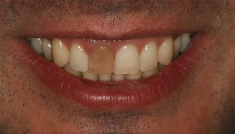 Tengo un diente oscuro ¿cómo puedo arreglarlo? - Clínica Bio - Odontología